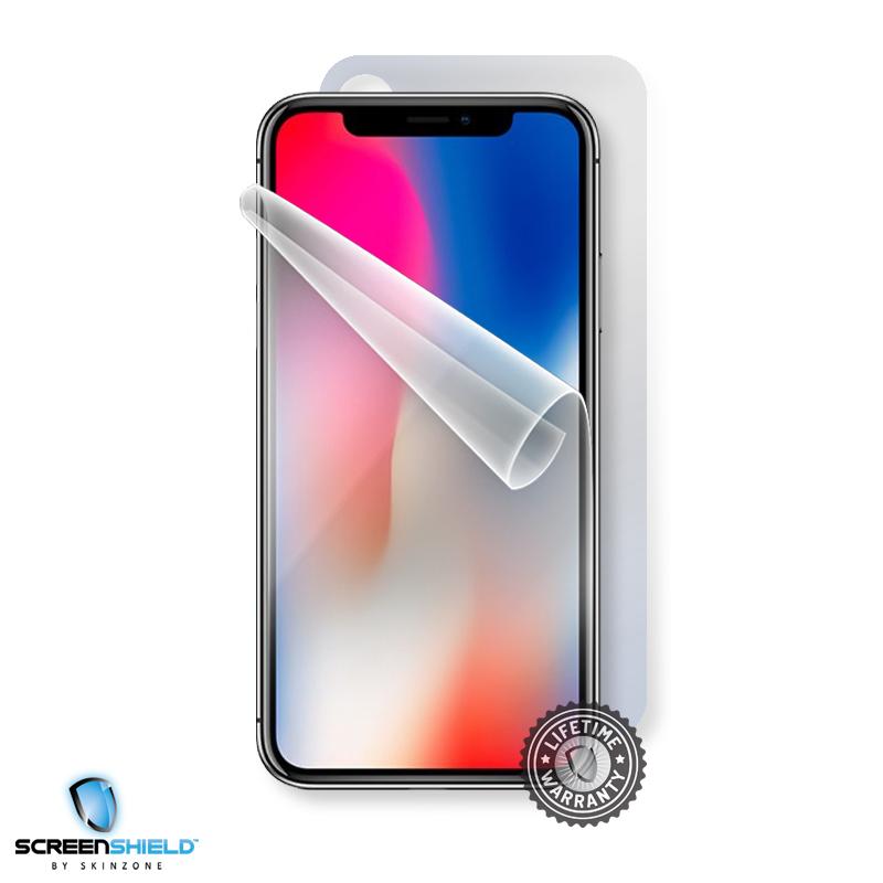 Screenshield APPLE iPhone X folie na celé tělo